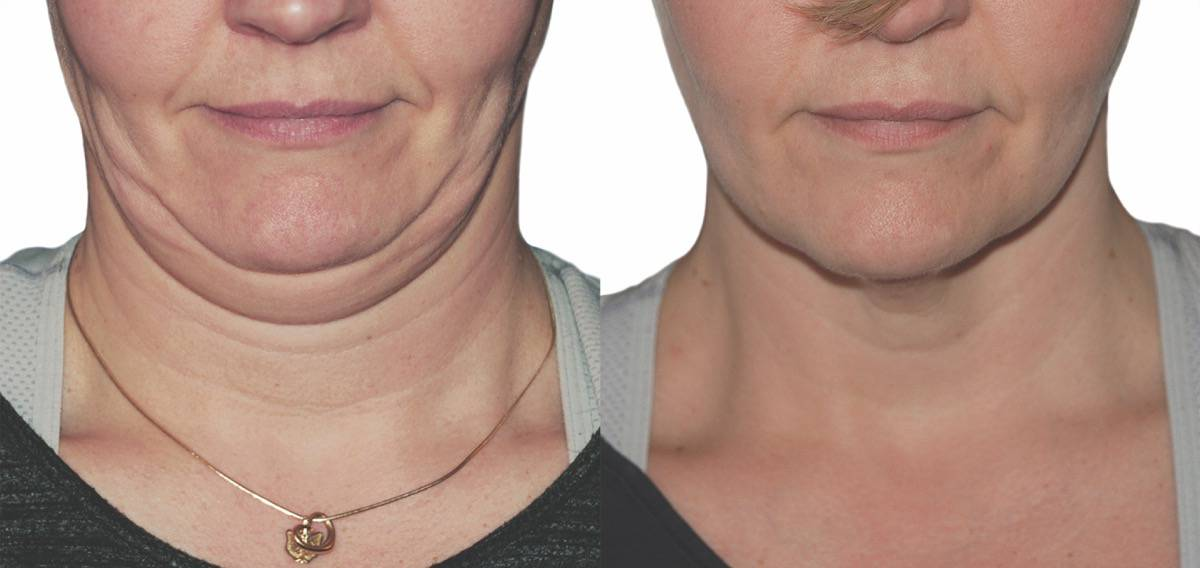 Instant Double Chin Reduction Treatment | Strawberry Laser
