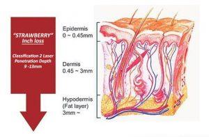 Strawberry Laser Lipo Inch Loss Illustration